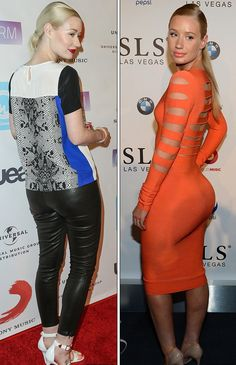 Iggy Azalea Butt Implants Plastic Surgery Before And After Fake Or Real