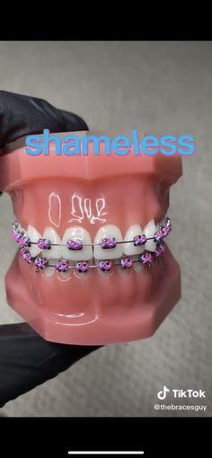 Cute Girls With Braces, Cute Braces Colors, Dental Braces, Teeth Braces, Braces Transformation, Pink Braces, Smile Whitening, Braces Tips, Getting Braces