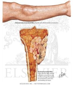 Osteosarcoma of the Tibia