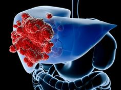 Liver cancer is the fifth most common cancer and the third leading cause of death from cancer worldwide.