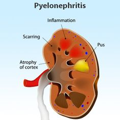 Kidney Infection (Pyelonephritis) Symptoms, Causes, Treatment - What is a kidney infection, and are kidney and urinary tract infection the same?