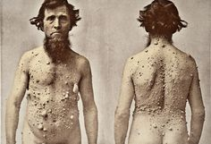 A man with Leprosy (Picture: Alamy)