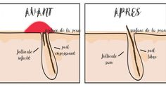 une-recette-miracle-pourse-debarrasser-des-poils-incarnes-2