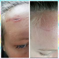 Before and after using Arbonne's Genius resurfacing pads after just 30 days! This stuff is amazing! Click photo to order!