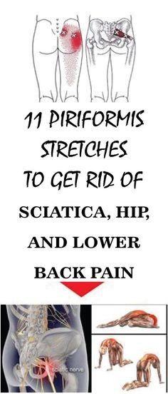 One of the most agonizing health issues is to experience sciatic nerve pain. There are many reasons that cause sciatica such as spinal stenosis ruptured disk body injury etc. The first things that need to be checked if one experiences a sciatic nerve Sciatic Nerve Relief, Sciatica Exercises, Sciatic Pain, Back Pain Exercises, Sciatica Massage, Stretching Exercises, Stretches, Massage, Exercises