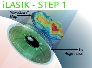 First, Visual Aids Centre use the most advanced measurement technology in the world to painlessly measure your eyes. WaveScan technology creates a 3D map of each eye, detecting even the most minute imperfections, so that your iLASIK surgeon can custom-fit your treatment to your individual eyes.