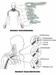 cervical radiculopathy - nerve pinch sites