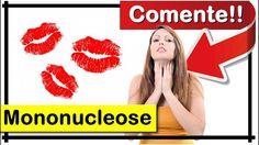 【AQUI】 O Que é Mononucleose? Quais São os Sintomas?