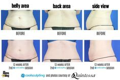 Does #CoolSculpting really work? Check out the Before and After Photos and see for yourself! Reclaiming My Body Confidence with CoolSculpting by Quintessa http://milwaukee.citymomsblog.com/self-care/body-confidence-coolsculpting/
