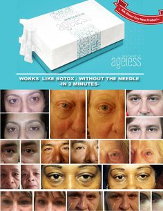 Instantly Ageless - Jeunesse- Botox Alternative by Sarah Antos via slideshare Alternative Zu Botox, Wrinkle Remedies, Acne Remedies, Homemade Facial Mask, Under Eye Bags, Eye Wrinkle, Prevent Wrinkles, Health And Beauty