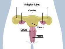 vaginal cuff after hysterectomy endometriosis robotic surgery