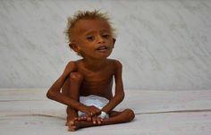 اخبار اليمن الان عاجل تقرير: اليمن مهدد بالمجاعة والانهيار!