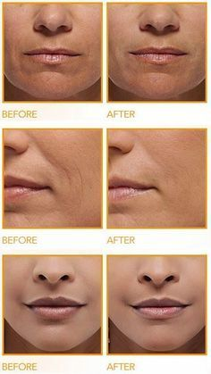 How to Get Rid of Deep Wrinkles Around the Mouth