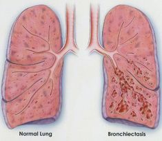 Bronchiectasis is a rare condition where the airways leading to the lungs become damaged. The result of bronchiectasis is enlargement of the bronchial tubes, loss of elasticity, scarring, and destruction of cilia instrumental in protecting the lungs from dust, bacteria, and excess mucus. With these protective mechanisms disabled, severe chronic infections result. Bronchiectasis leads to … Continue reading »