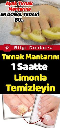 Clean the fungus with lemon in 1 hour - Nagellack .- Tırnak Mantarını 1 Saatte Limon İle Temizleyin – Nagellack – Clean Nail Fungus with Lemon in 1 Hour – Nagellack – # … – pflege – The Mushroom # - Nail Problems, Clean Nails, Nail Fungus, Nail Treatment, Medicinal Plants, Diet And Nutrition, Toe Nails, Fungi, Herbs