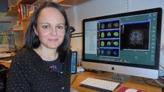 El cerebro se inflama veinte años antes de que surja el alzhéimer