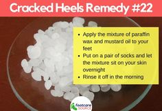 Cracked feet are unsightly and painful. People suffering from cracked feet or heel fissures usually hide their feet in stuffy shoes. Aside from the physical embarrassment of the condition, most people who have dry feet Dry Cracked Heels, Cracked Feet, Heel Fissures, Cracked Heel Remedies, Dry Skincare, Mustard Oil, Soft Feet, Natural Moisturizer, Paraffin Wax