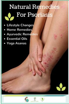 Natural Headache Remedies Natural remedies for psoriasis including Lifestyle changes, home remedies, essential oils and yoga asanas for psoriasis Home Remedies For Psoriasis, Home Remedies For Arthritis, Psoriasis Cure, Cold Home Remedies, Constipation Remedies, Headache Remedies, Natural Add Remedies, Ayurvedic Remedies, Holistic Remedies