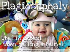 What to expect when getting a helmet for plagiocephaly (flat or misshapen head) || Tiny Cherry Workshop