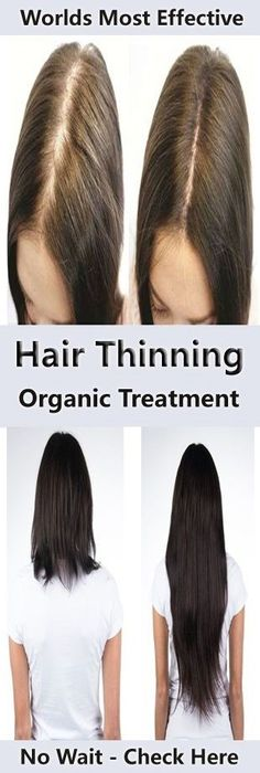 Overweight Treatment Organic Treatments For Hair Thinning :- World's Most Effective Treatments Are Here! - Thinning hair is an issue that's faced by both men and women. In fact, according to the American Hair Loss Association, approximately Losing Hair Women, Hair Loss Women, Thin Hair Styles For Women, Natural Hair Styles, Hair System, Hair Falling Out, Hair Loss Remedies, Prevent Hair Loss