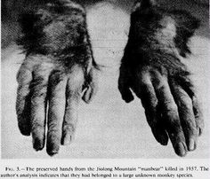 Preserved hands of the Jiolong Mountain (China) man-bear killed in 1957.