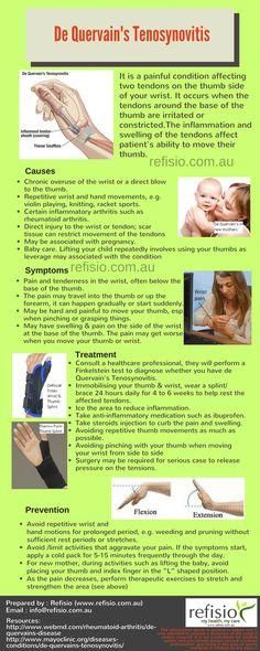 De-Quervain's Tenosynovitis - Causes, Symtoms, Treatment & Prevention