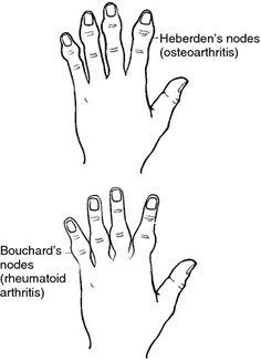 Boutonniere vs Swan neck deformities in Rheumatoid
