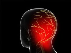 Occipital Neuralgia   Overview  This condition is a distinct type of headache caused by irritation or injury of the occipital nerves. These nerves travel from the base of the skull through the scalp. This condition can result in severe pain and muscle spasms.  Causes  Occipital neuralgia can be caused by direct trauma to the back