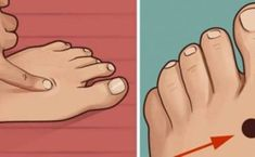 Acupuncture For Pain Relief acupuncture point linked to easing insomnia and sleep issues Our body hides many more secrets than we may think. Point Acupuncture, Acupuncture Benefits, Reiki, Health Benefits, Health Tips, Health And Wellness, Stress, Health Remedies, Home Remedies