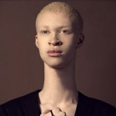 Picture of Shaun Ross Albino Men, Beautiful Children, Beautiful People, Shaun Ross, Violet Eyes, Model Photos, Black Is Beautiful, Face And Body, Albinism