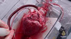 Vor eine Weile hatte Al Jazeera America diese kurze Dokumentation über den Transport eines Herzes, das transplantiert werden soll, veröffentlicht. Faszinierend zu sehen, wie der menschliche Motor des Lebens von einem Körper in einen anderen wechseln kann – und das auch zeitweise ohne...