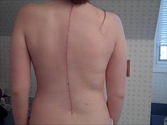 Inspiring Story: #Dancer Learns How to Train Her Body to Move Again After #Scoliosis Surgery / http://balletshoesandbobbypins.com/dancing-with-scoliosis/