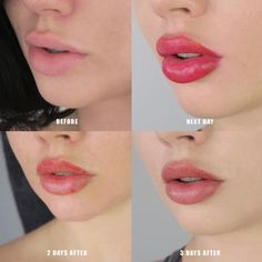 Lip blushing FAQs: Our smart guide to cosmetic lip tattoo, … – Microblading Lip Permanent Makeup, Lip Makeup, Cosmetic Lip Tattoo, Lip Color Tattoo, Kylie Jenner Lips, Lip Injections, How To Line Lips, Too Faced, Kissable Lips