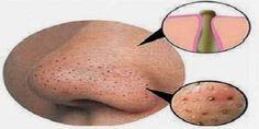 Die Aufrechterhaltung einer klaren und schönen Haut braucht Zeit, Konsistenz und Mühe. Dermatologen können viele Produkte empfehlen, aber einige von ihnen könnten teuer sein und brauchen tatsächlich eine lange Zeit, um zu wirken. Du kannst jedoch einige Hausmittel gegen Mittesser und Pickel in deine