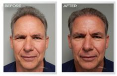 Best Hair Transplant Doctor Before and After