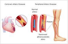 Download Peripheral Vascular Diseases