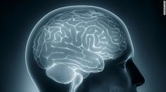 Neuroimaging shows gray matter changes in brains of teenagers with type 2 diabetes.