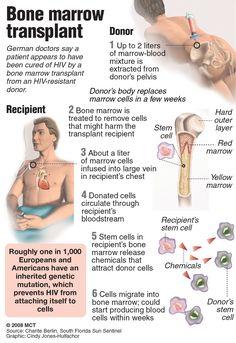 Best Bone Marrow Transplant in Mumbai – Credihealth Medical Surgical Nursing, Oncology Nursing, Nursing Mnemonics, Pediatric Nursing, Nursing School Tips, Nursing Tips, Nursing Notes, Medical School, Nurse Teaching