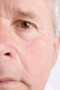 eye area exercises to improve dark circles
