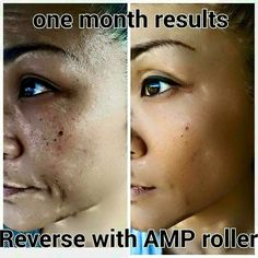 Reverse can be used on any skin to brighten and Reverse damage,  Rodan and Fields. KDRussell1.myrandf.com