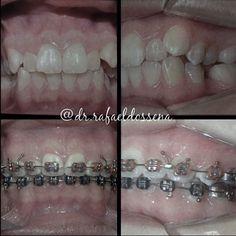 #odontologia #orto #ortodontia #odonto #dentista #sorriso #saude #dentist #dentistry #ortho #orthodontics #smile #dental #teeth #estetica #saudebucal cada caso depende da avaliação do cirurgião dentista by dr.rafaeldossena Our General Dentistry Page: http://www.myimagedental.com/services/general-dentistry/ Google My Business: https://plus.google.com/ImageDentalStockton/about Our Yelp Page: http://www.yelp.com/biz/image-dental-stockton-3 Our Facebook Page…