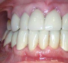 clenching teeth home remedies