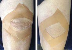 Effetti del tape sullo stress muscolare durante la contrazione e a riposo