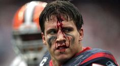 Houston Texans linebacker Brian Cushing reacts after he was hit in the face by Cleveland Browns offensive guard Shawn Lauvao in the second quarter at Reliant Stadium in Houston. The Texans won the game 30-12.