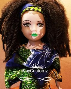 Artist Creates Dolls With Vitiligo and Other Realistic Features So People Can Relate to Them