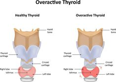 Hyperthyroidism or overactive thyroid is a condition in which the thyroid gland makes more thyroid hormone than your body needs. Thyroid Cancer Symptoms, Thyroid Hormone, Thyroid Health, Thyroid Test, Symptoms Of Overactive Thyroid, Hyperthyroidism Symptoms, Hypothyroidism, Thyroid Problems, Health