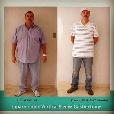 An amazing transformation by one of our gastric sleeve patients! Check out our website, www.hoab.org for more information. Follow us on Instagram (www.instagram.com/hoab_stl) for more photos like this.   #WLS #stlouisWLS #gastricsleeve #HOAB #beforeandafter #transformationtuesday