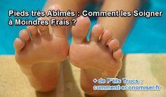 Mes pieds sont comme le reste de mon corps : ils ont besoin d'être beaux et hydratés !  Découvrez l'astuce ici : http://www.comment-economiser.fr/pieds-abimes.html?utm_content=buffer68127&utm_medium=social&utm_source=pinterest.com&utm_campaign=buffer