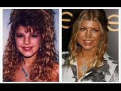 20 Best and Worst Celebrity Plastic Surgery ... - YouTube