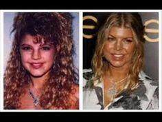 20 Best & Worst Celebrity Plastic Surgery Stories (Part 5) - YouTube